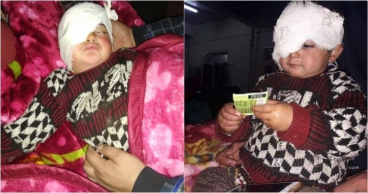19-Month-Old Heeba Is The Youngest Victim Of Pellet Guns In Kashmir; May Lose Sight