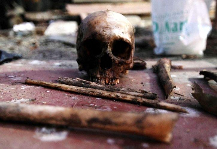 Human Skeleton Smuggling