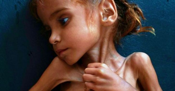 Starving Yemen Girl Who Turned World's Eyes Towards Famine & Became Symbol Of Crisis Is Dead