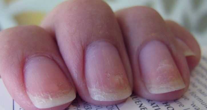 7 Health Conditions Your Nails Are Trying To Warn You Of