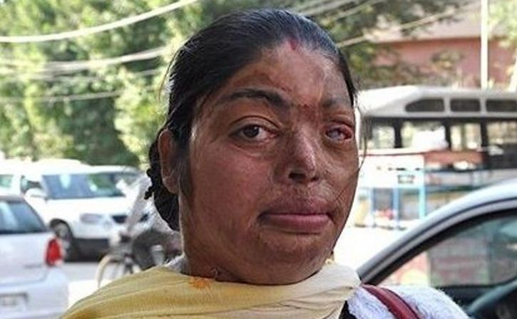 Story of Women Who Survived Acid Attack and Fought back