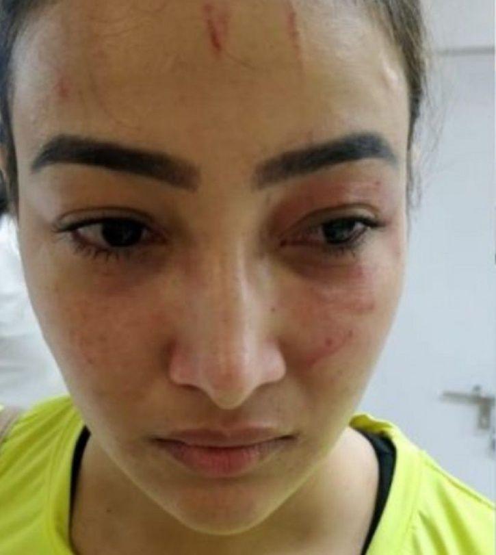 TV actress attacked by roommate Preeti Rana.