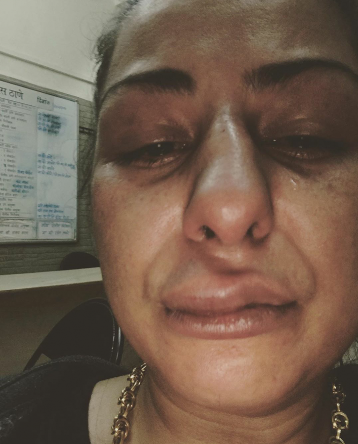 Hard Kaur posts picture of physical assault, accuses MO Joshi.