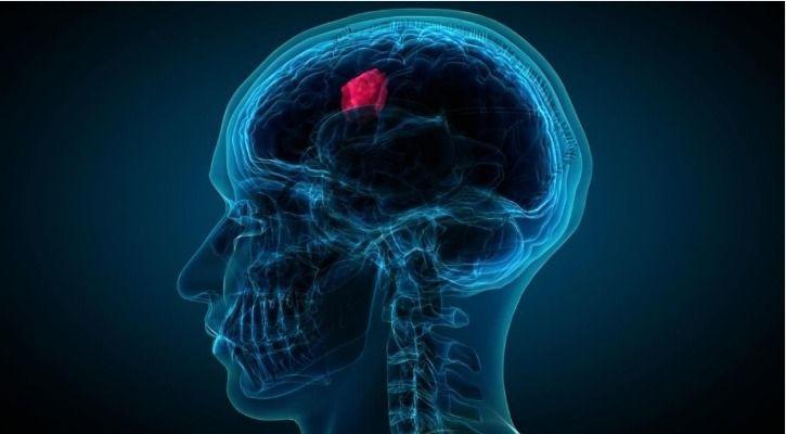brain scan gaming