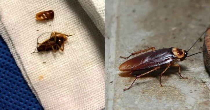 Cockroaches Ear