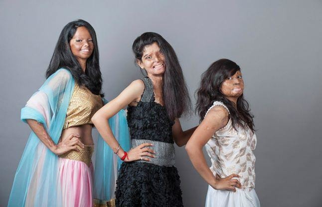 #Respect: Acid Attack Victims Pose For Photoshoot