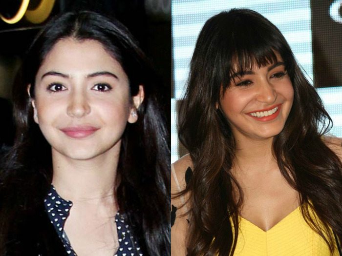 What's Wrong With Anushka Sharma's Face?