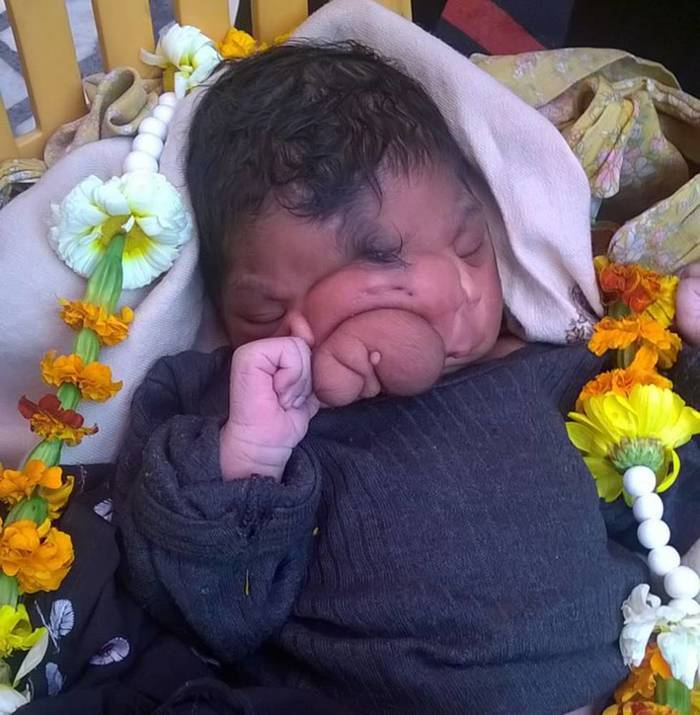 Is The Baby Girl Born With A Trunk An Avatar Of Lord Ganesha?