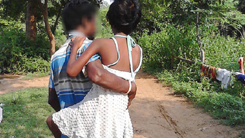 Man Carries His 9-year-old Daughter 4 Kms Everyday For Treatment