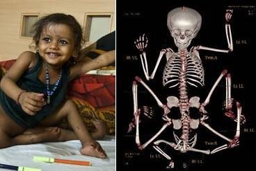 10 Shocking Miracle Stories From India