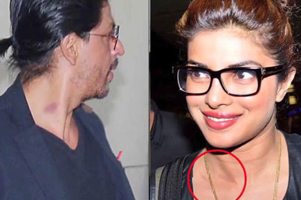 Bollywood Celebrities Caught With Love Bites
