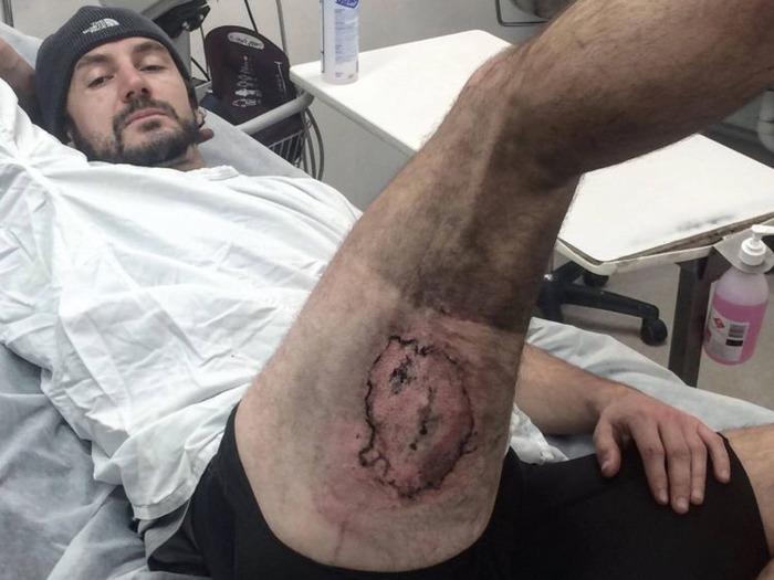 Shocking: IPhone Explodes In Pocket, Australian Man Suffers Third Degree Burns