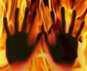 Honour Killing: Girl Burnt Alive By Parents For Dating Uncle