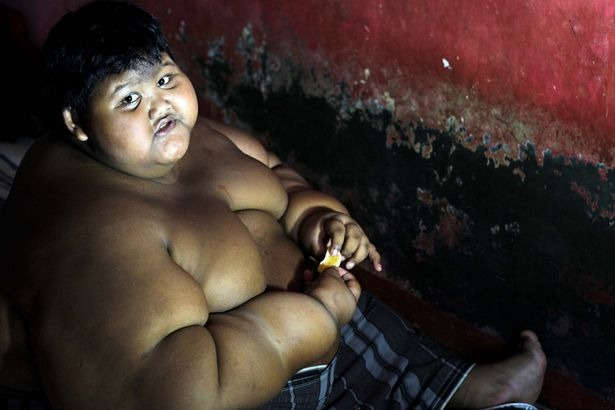 Meet The World's Fattest Kid From Indonesia; Weighs 192 Kgs