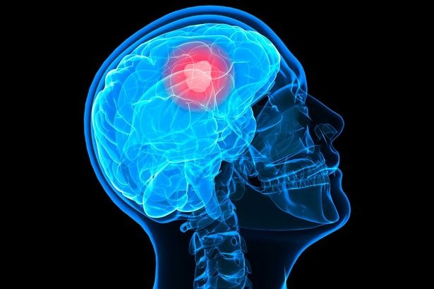 Over 2,500 Indian Kids Suffer From Brain Tumour Every Year