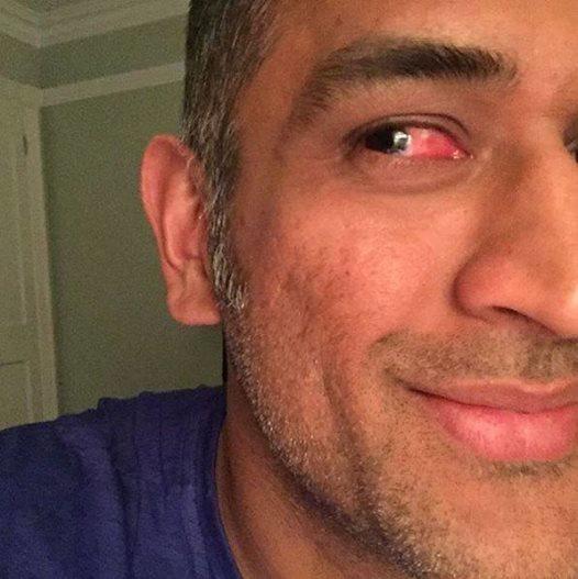 Mahendra Singh Dhoni Survives Freak Accident Against Zimbabwe