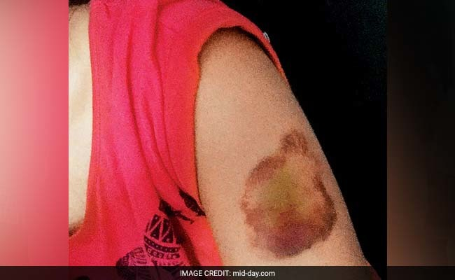 Pune Harassment Case: Woman Beaten Up For Wearing A Short Dress Around Her Male Friends!