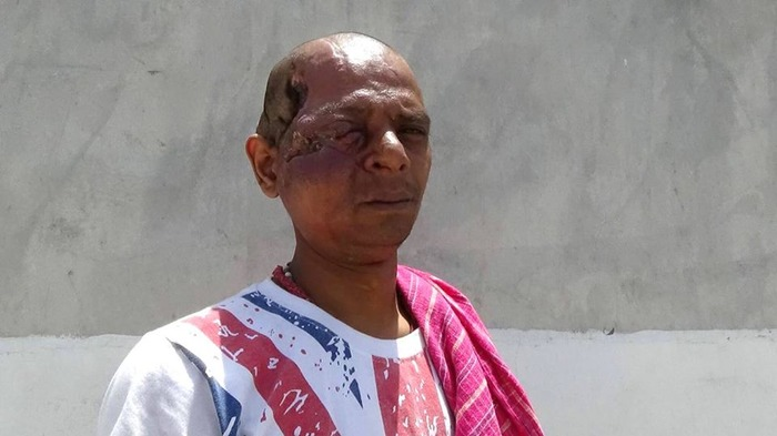 Moving Story: The Man Who Lost Everything Because Of A Scar!