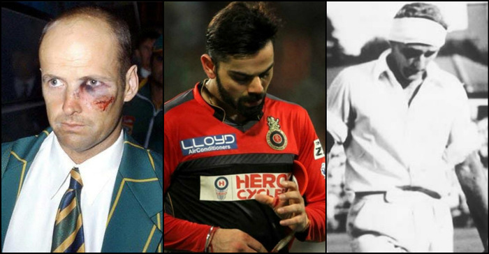 Heroism On The Pitch: When Cricketers Played The Game Despite Injuries!