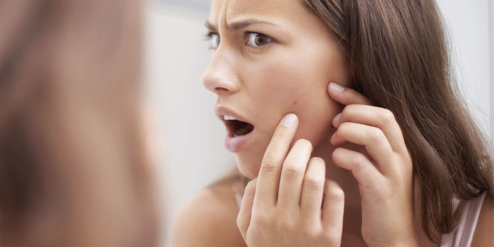 Got Acne? You Must Eat These Foods To Help Get Rid Of It