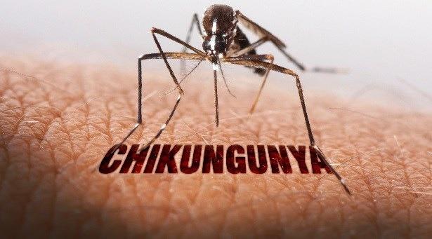 Home Remedies To Treat Chikungunya