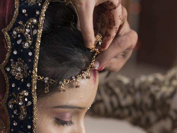 Skin Problems Related To Cultural Practices in India  Sindoor