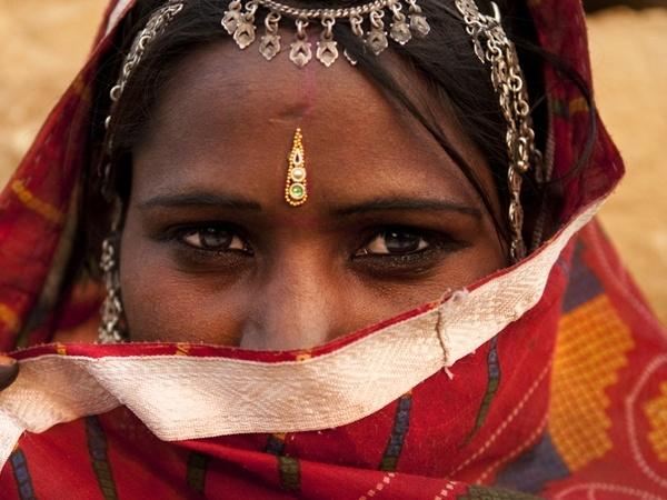 Skin Problems Related To Cultural Practices in India  Bindi